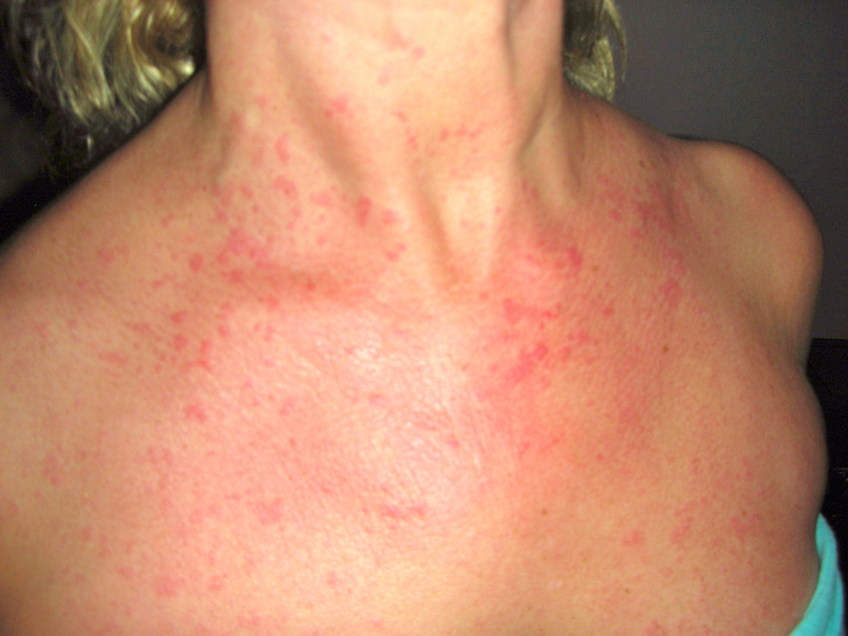 raised rash on neck #10